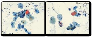 Tumorzellen_Abstrich